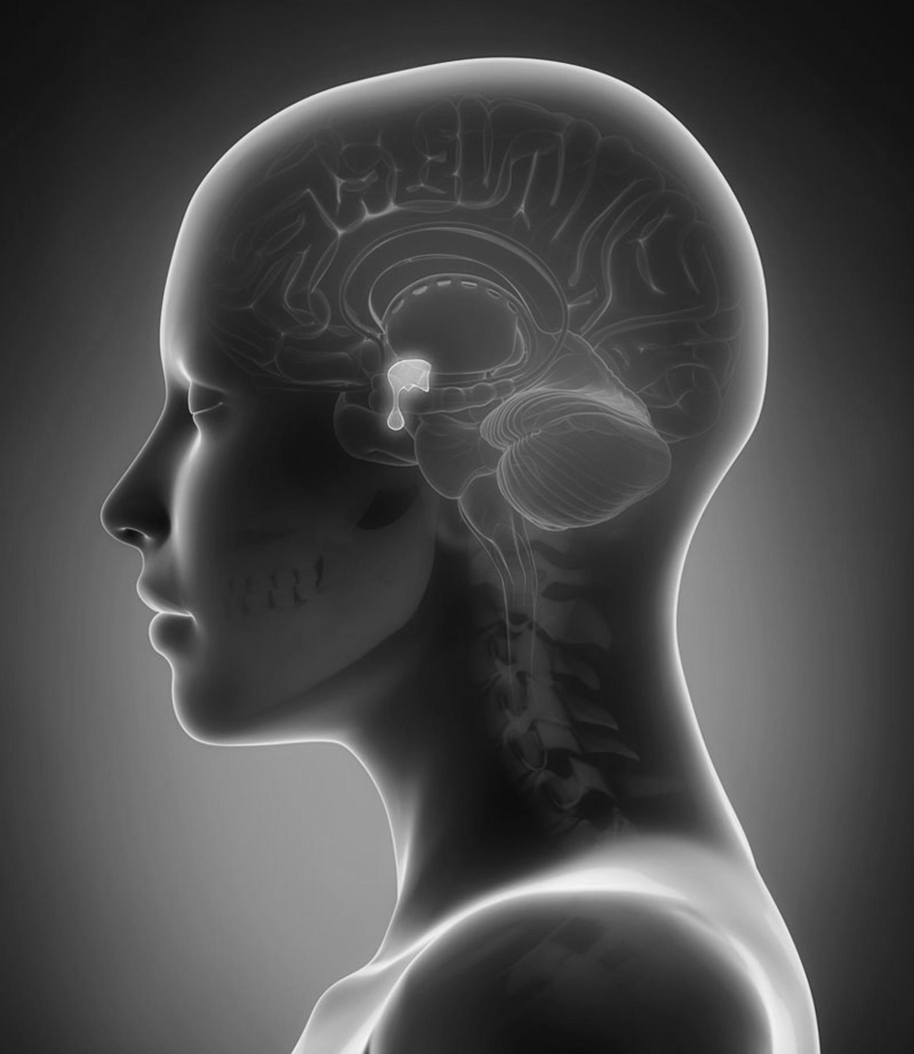 Tumora glandei hipofizare și pierderea în greutate - Cuvinte cheie de căutare